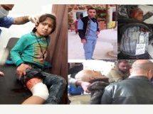 Bilancio dei civili feriti e uccisi il 6 marzo 2018