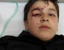 Esplosione di mine, sette bambini gravamente feriti