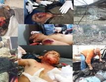 Dossier informativo sui crimini e reati di guerra della Turchia contro umanità ad #AFRIN