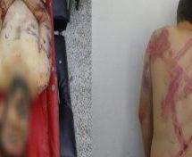 Soldati turchi uccidono un giovane arabo sul confine