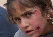 A Shehba si scatena un epidemia di malattie della pelle