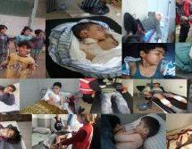 Dossier Afrin: Bambini vittime degli attacchi turchi tra 20/01 e 21/02/2018