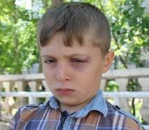 La polizia turca colpisce un bambino di 8 anni con una pallottola di gomma nel cantone di Cizre